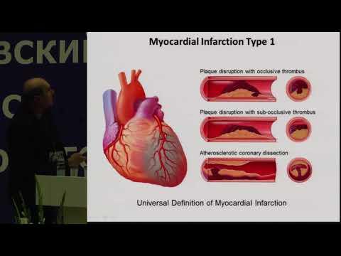 Таблетки от сахара в крови метформин
