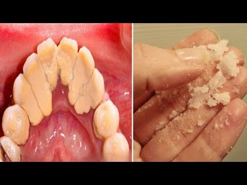Varicosity e trattamento limfostaz