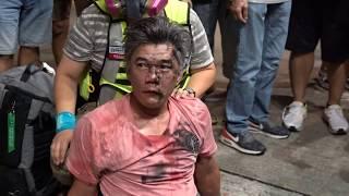 警方旺角清場期間 示威者制服一名據說是藍絲暴徒交給警方(有趣一幕)