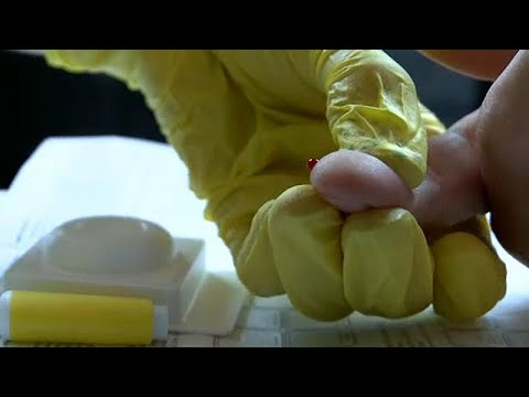 A parazitak tunetei az emberi test kezeleseben