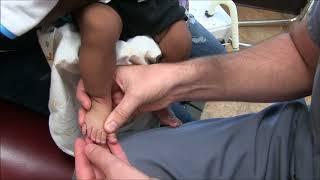 Polydactyly in Children