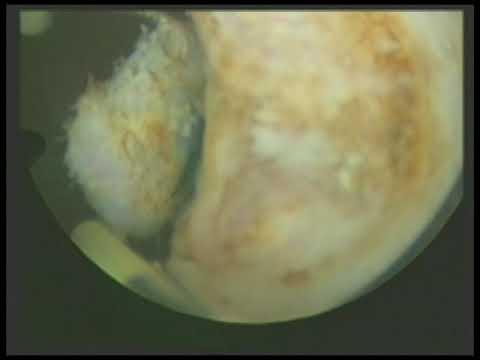 Ehostruktura Prostata parenchyma