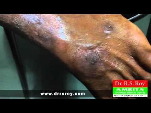 Tipos de eczemas de uma foto