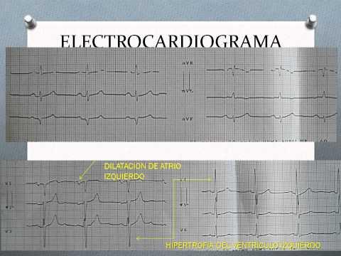 Sindrome di cardiopatia ipertensiva