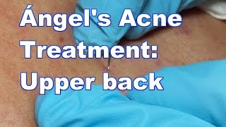 Ángel's Acne Treatment:  Upper Back