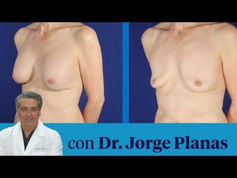 Cuesta cuanto implant para el aumento del pecho