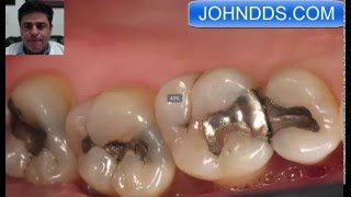 Silver Black Mercury Dental Fillings removed and white fillings placed in Downey Ca Dentist
