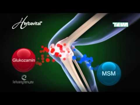 Hatékony kenőcs a térd artrózisának kezelésére