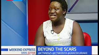Gospel artiste Molly Kemunto, survived a motorbike accident in 2010 | Beyond the Scars