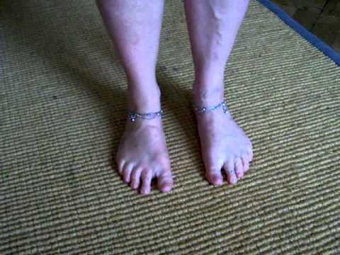 Die Zapfen auf den Knochen des Fusses der Beine
