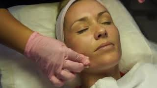Microdermabrasion w/Crystals