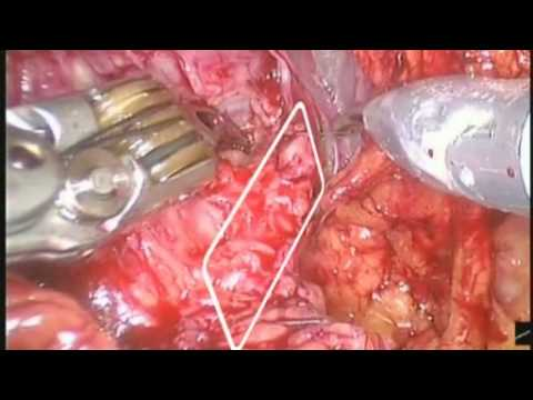 Robot-Assisted Laparoscopic Radical Prostatectomy (RALRP) - Total Periprostatic Protection