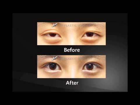Лазерная хирургия глаза в донецке