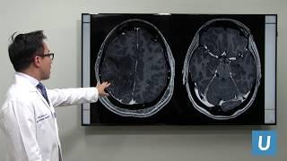 Treatment of Brain Metastases - Won Kim, MD | UCLAMDChat Webinars