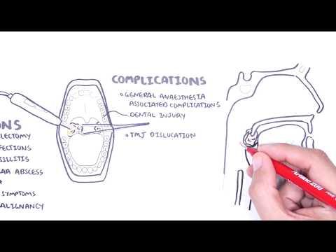 Ostre zapalenie migdałków - przyczyny (wirusowe, bakteryjne), patofizjologia, leczenie, wycięcie migdałków