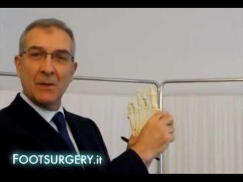 Quote per sostituzione del ginocchio a Kirov