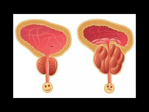 Savjeti za prostatitis