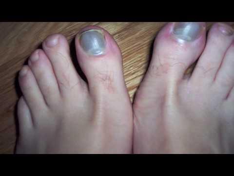 Hlorka puede sanar el hongo de las uñas