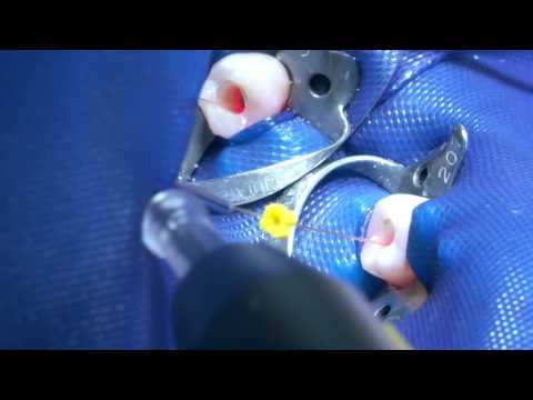 Root canal disinfection with SIROLaser Blue