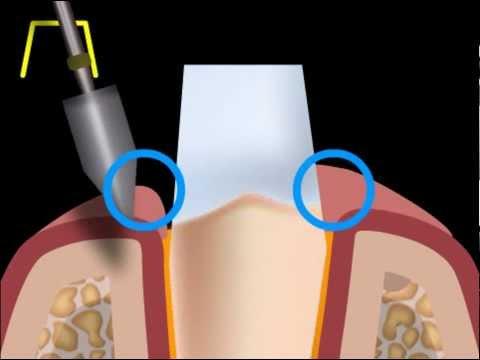 Что такое неправильная шлифовка зуба?