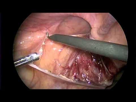 Laparoskopowa operacja przepukliny pachwinowej u dziecka