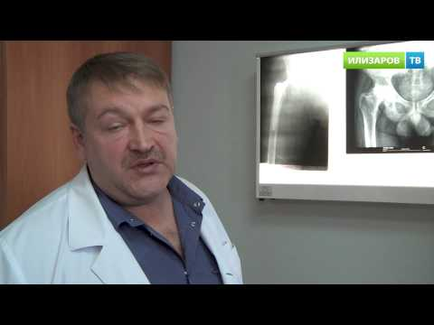 Остеохондроз 1-2 стадии поясничного отдела