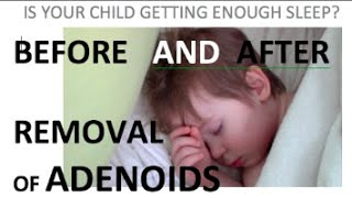 Before and After removal of adenoids   3 year old with sleep apnea and nasal speech