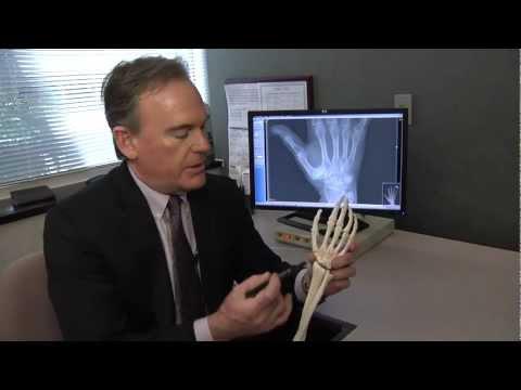 Behandlung von Schmerzen im Nacken