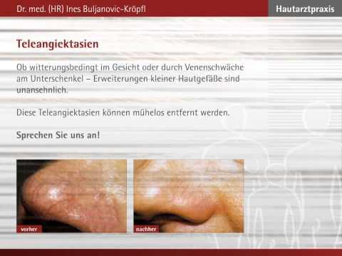 Die Pigmentation auf der Haut von den Erkrankungen der Leber