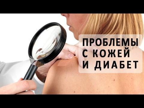 Проблемы с кожей при сахарном диабете