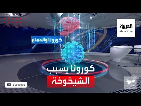 العرب اليوم - شاهد: دراسة مرعبة تكشف أن