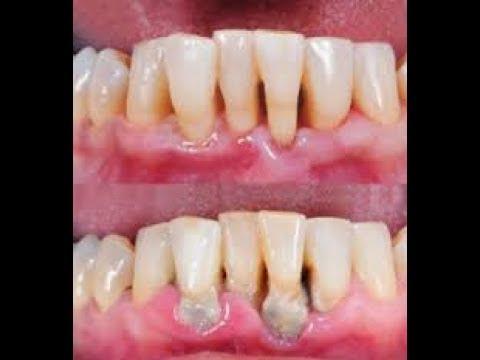LUAR BIASA!! Inilah Cara Membersihkan Karang Gigi Secara Alami Tanpa Efek  Samping foto kehilangan berat badan pada diet 5 sendok 8723da0949