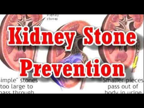 Prevention of Kidney Stones