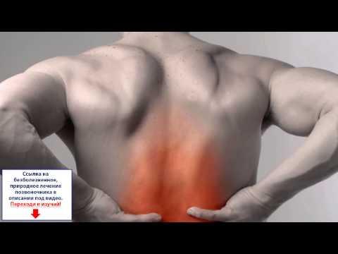 Как получить больничный с болями в спине