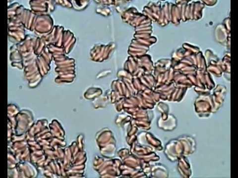 Грибы нити мицелия это паразиты