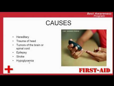 Video causes of seizures, reasons of seazures, factors causes seizures