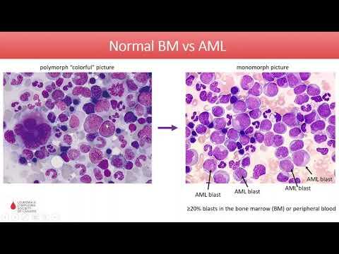 Ostra białaczka szpikowa - diagnoza i leczenie w 2020