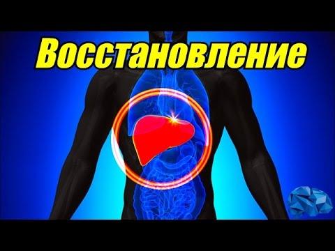 Цирроз печени симптомы википедия