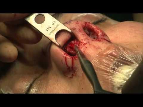 Laugmentation du membre lopinion des médecins