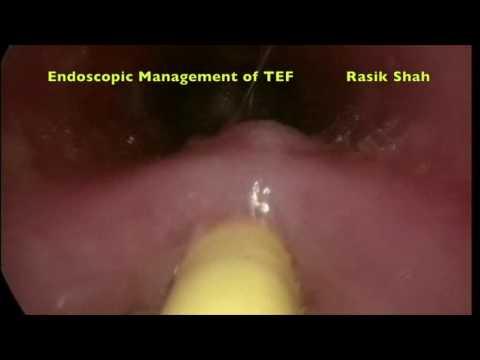 Postępowanie endoskopowe z przetoką tchawiczo-przełykową