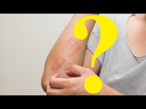 Le psoriasis le traitement longuent le roi de la peau