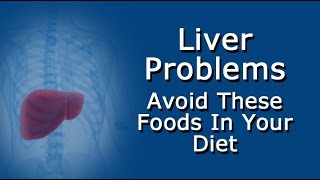 Liver Problems?   Avoid These Foods In Your Diet