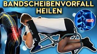 Wie DU einen Bandscheibenvorfall heilst! (Ohne OP) - Nubax Rückentrainer (Gutscheincode)