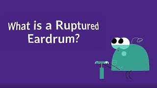What is a Ruptured Eardrum? (Tympanic Membrane Perforation)