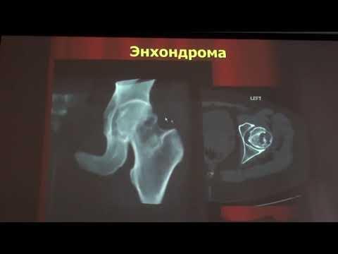 Доброкачественные опухоли костно-суставной системы 2