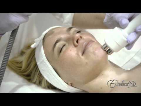 Mask para sa skin care pagkatapos ng 25