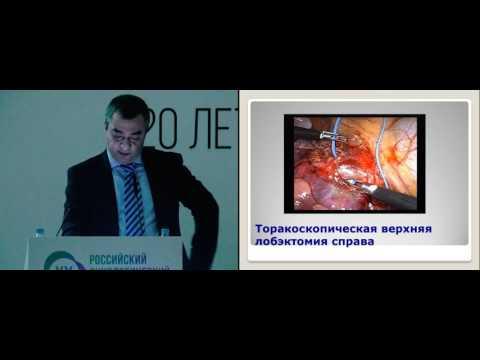 Современные возможности торакоскопии в хирургии опухолей торакальной локализации