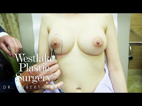 Educational Video: Types Of Incisions Made During A Breast Lift