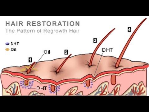 Keratin malalim hair repair