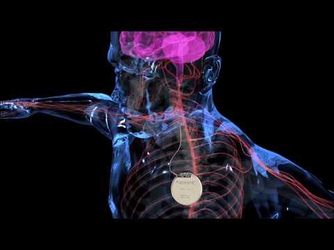 Epilepsi Pili (VNS) Animasyon